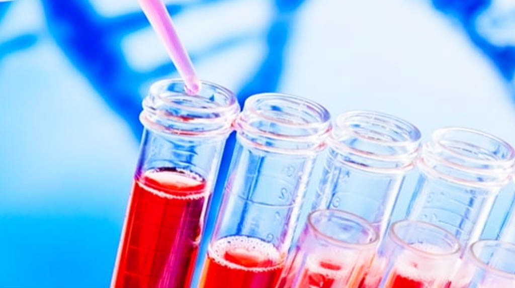 Type O, Rh- blood may be linked to lower Covid risks